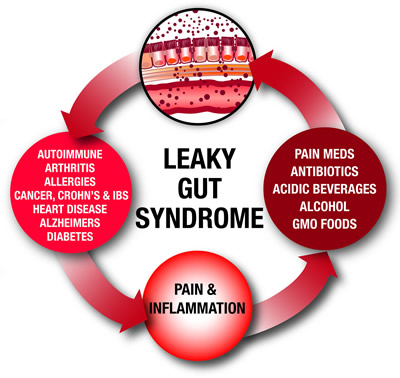 Leaky Gut Syndrome - imagine